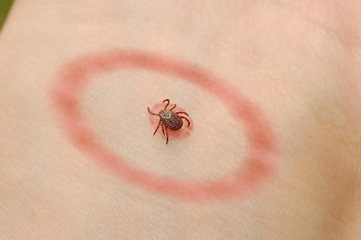Ce este boala Lyme